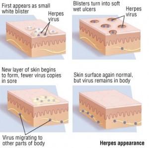 herpes diagram