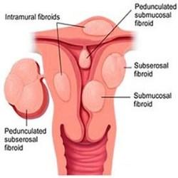 Fibroids Symptoms